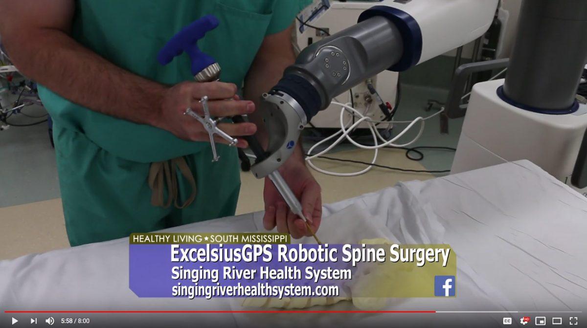 ExcelsiusGPS™ Robotic Navigation Spine Surgery